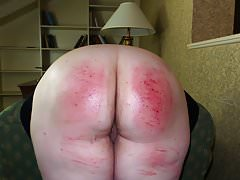 A Therapeutical Paddling - (Spanking)