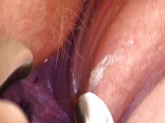 Speculums and Female Urethral Sounding